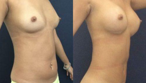 breast augmentation colombia 231-4-min