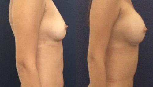 breast augmentation colombia 231-5-min