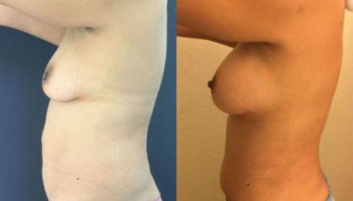 breast augmentation colombia 254-3-min