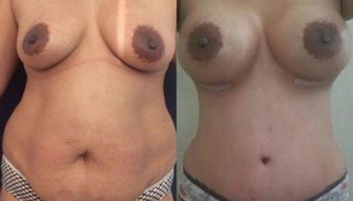 breast augmentation colombia 257-1-min