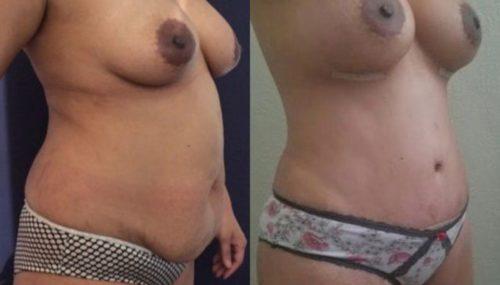 breast augmentation colombia 257-4-min
