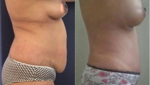 breast augmentation colombia 257-5-min