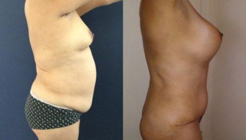 breast augmentation colombia 261-5-min