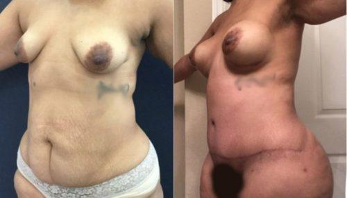 breast augmentation colombia 265-2-min