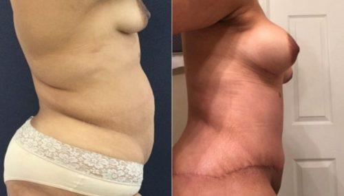 breast augmentation colombia 265-5-min