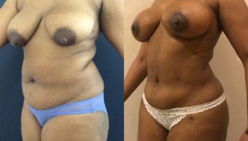 breast augmentation colombia 279-2-min