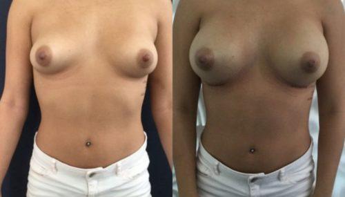 breast augmentation colombia 292-1-min