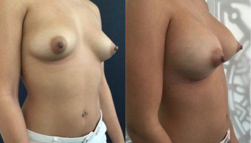 breast augmentation colombia 292-4-min