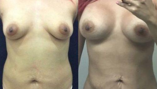 breast augmentation colombia 300-1-min