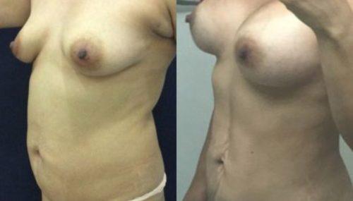 breast augmentation colombia 300-2-min