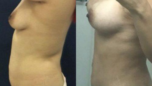 breast augmentation colombia 300-3-min