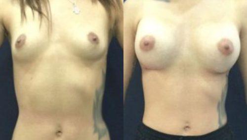 breast augmentation colombia 306-1-min