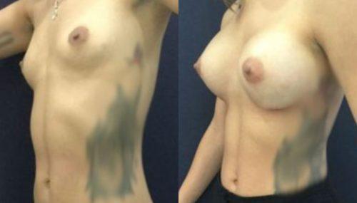 breast augmentation colombia 306-2-min