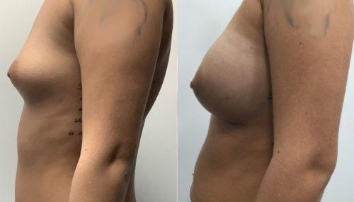 breast augmentation colombia 315-3-min