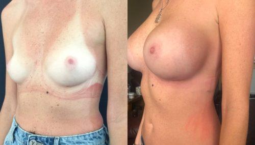breast augmentation colombia 344-2-min