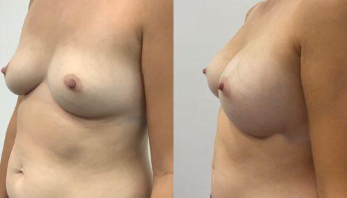breast augmentation colombia 365-4-min