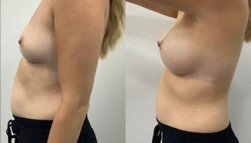 breast augmentation colombia 365-5-min