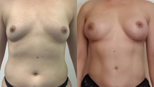 breast augmentation colombia 366-1-min