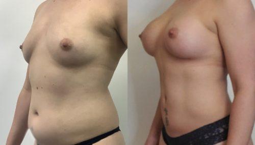 breast augmentation colombia 366-2-min