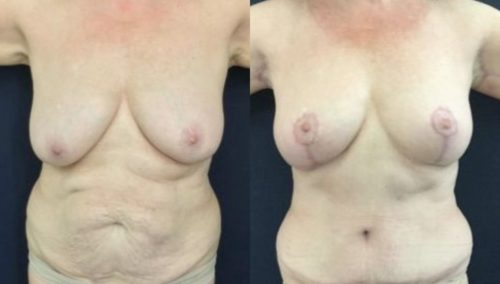 breast lift colombia 246-1-min