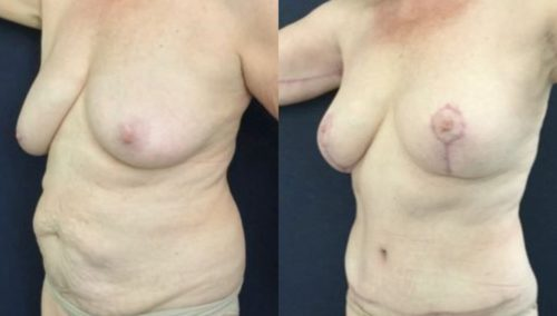 breast lift colombia 246-2-min