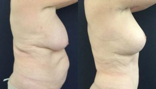 breast lift colombia 246-5-min
