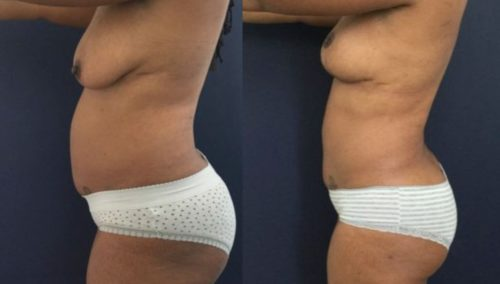 breast lift colombia 273-2-min