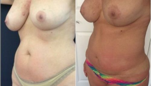 breast lift colombia 274-2-min