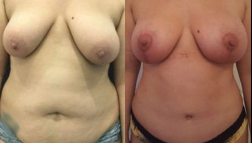breast lift colombia 288-1-min