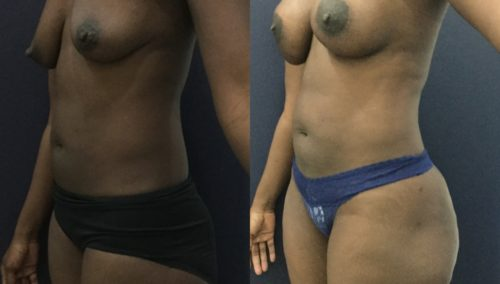 breast lift colombia 343 - 2-min
