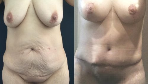 breast lift colombia 354-1-min