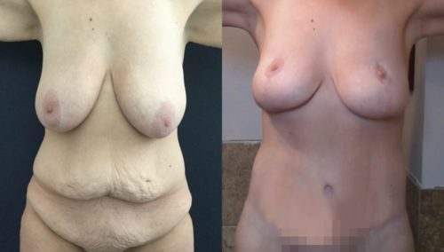 breast lift colombia 389-1-min