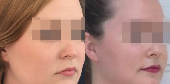 buccal fat pad excision Colombia 203 - 2-min