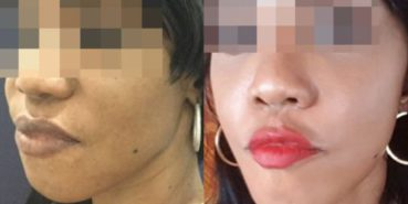 facelift colombia 211 - 2-min