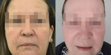 facelift colombia 230 - 1-min