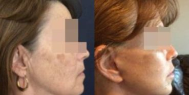 facelift colombia 292 - 3-min