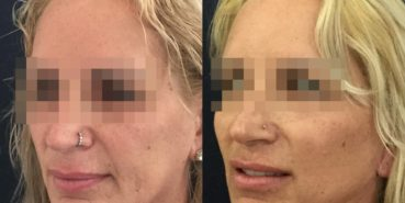 facelift colombia 325 - 4-min