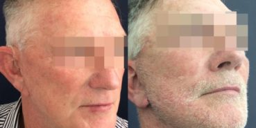 facelift colombia 352 - 2-min