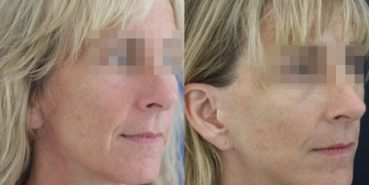 facelift colombia 366 - 2-min