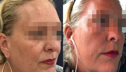 facial fat grafting colombia 106 - 2-min