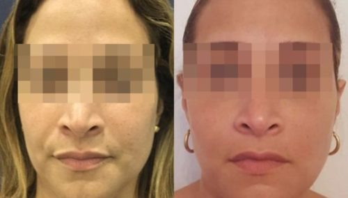 facial fat grafting colombia 286 - 1-min