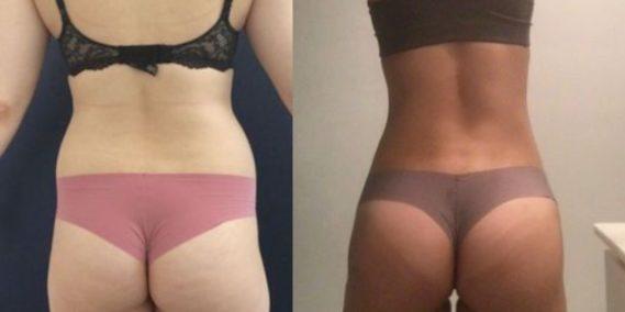 liposuction colombia 105 - 6-min