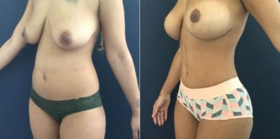 liposuction colombia 207 - 2-min
