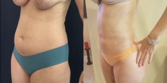 liposuction colombia 218 - 2-min