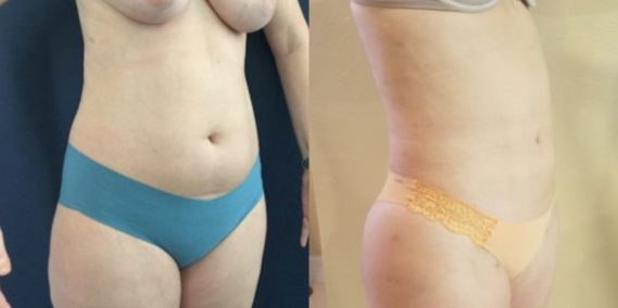 liposuction colombia 218 - 4-min