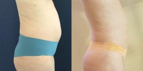 liposuction colombia 218 - 5-min