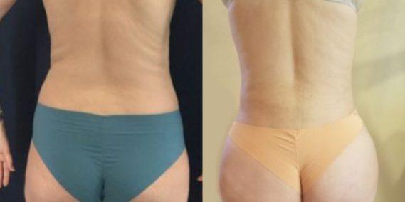 liposuction colombia 218 - 6-min