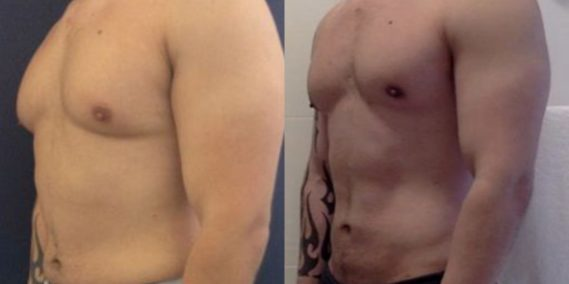 liposuction colombia 223 - 2-min
