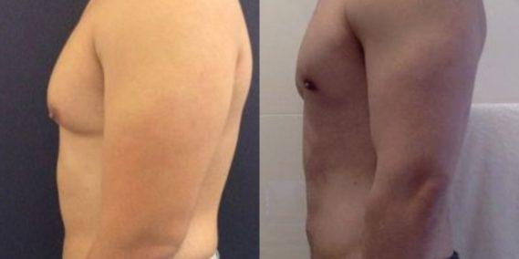 liposuction colombia 223 - 3-min