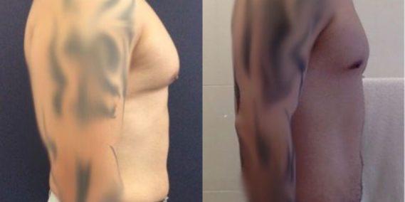 liposuction colombia 223 - 5-min
